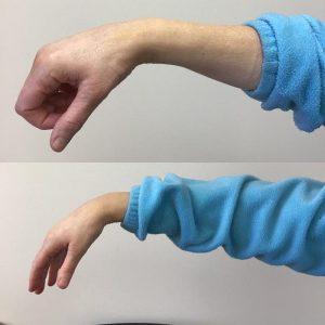 wrist and forearm